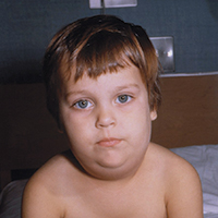 Child with swollen cheeks and face from mumps